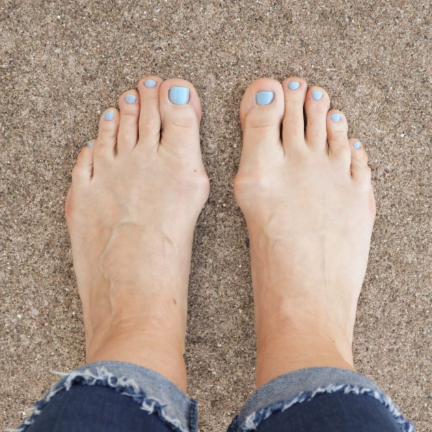 feet-with-bunions