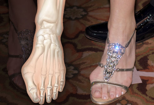 Bunion formed from wearing pointy shoes or sandals